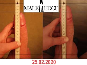 Penis Growth