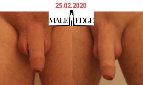 Male Edge + 3 inches